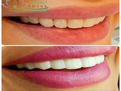 کلینیک دندانپزشکی لوتوس جهانشهر