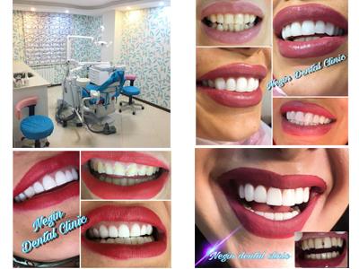 دندانپزشکی نگین مرزداران