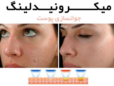 کلینیک پوست و لیزر آرمانی