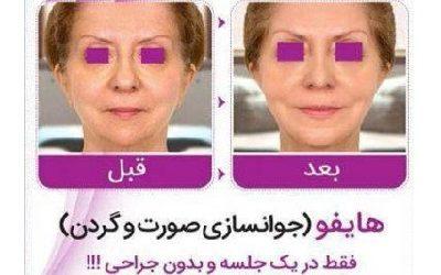 مطب پوست و زیبایی دکتر الیاسی