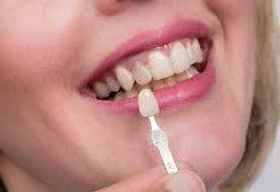 دندانپزشکی در گوهردشت